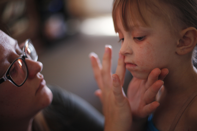 Acacia Hathaway puts Aquafore on her daughter Ella's rashes on her face at their home on Friday, Nov. 4, 2016, in Tonopah, Nevada. Rachel Aston/Las Vegas Review-Journal Follow @rookie__rae