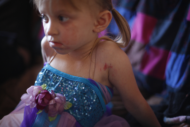 The rashes caused by Goltz syndrome can be seen on Ella's face and arms as she watches T.V. at her home on Friday, Nov. 4, 2016, in Tonopah, Nevada. Rachel Aston/Las Vegas Review-Journal Follow @r ...