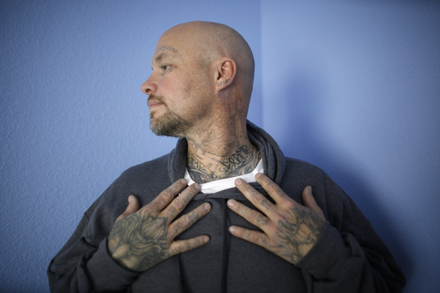 Marty Byars shows the progress of his laser removal treatments at the office of A Doors Open, a laser tattoo removal treatment non-profit that specializes in re-entry for ex offenders, on Sunday,  ...