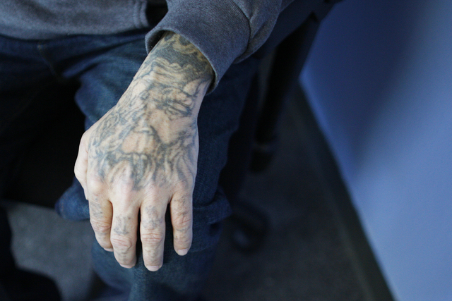 Marty Byars' hand before laser removal treatment at the office of A Doors Open, a laser tattoo removal treatment non-profit that specializes in re-entry for ex offenders, on Sunday, Dec. 11, 2016, ...