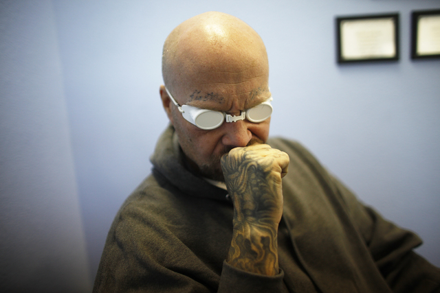 Marty Byars grimaces as his tattoos are removed at the office of A Doors Open, a laser tattoo removal non-profit that specializes in re-entry for ex-offenders, on Sunday, Dec. 11, 2016, in Las Veg ...