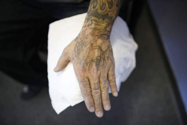 Marty Byars' hand after laser removal treatment at the office of A Doors Open, a laser tattoo removal treatment non-profit that specializes in re-entry for ex offenders, on Sunday, Dec. 11, 2016,  ...