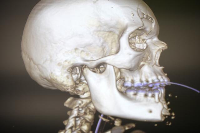 A human skeleton on a virtual anatomy table on Thursday, Feb. 9, 2017, at UNLV's School of Medicine in Las Vegas. (Rachel Aston/Las Vegas Review-Journal) @rookie__rae