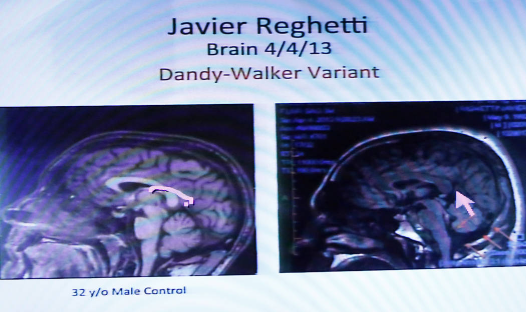 A CAT scan of the brain of Javier Righetti is displayed at the Regional Justice Center on Tuesday, March 21, 2017, during the penalty phase of Righetti's murder trial in Las Vegas. Righetti was co ...