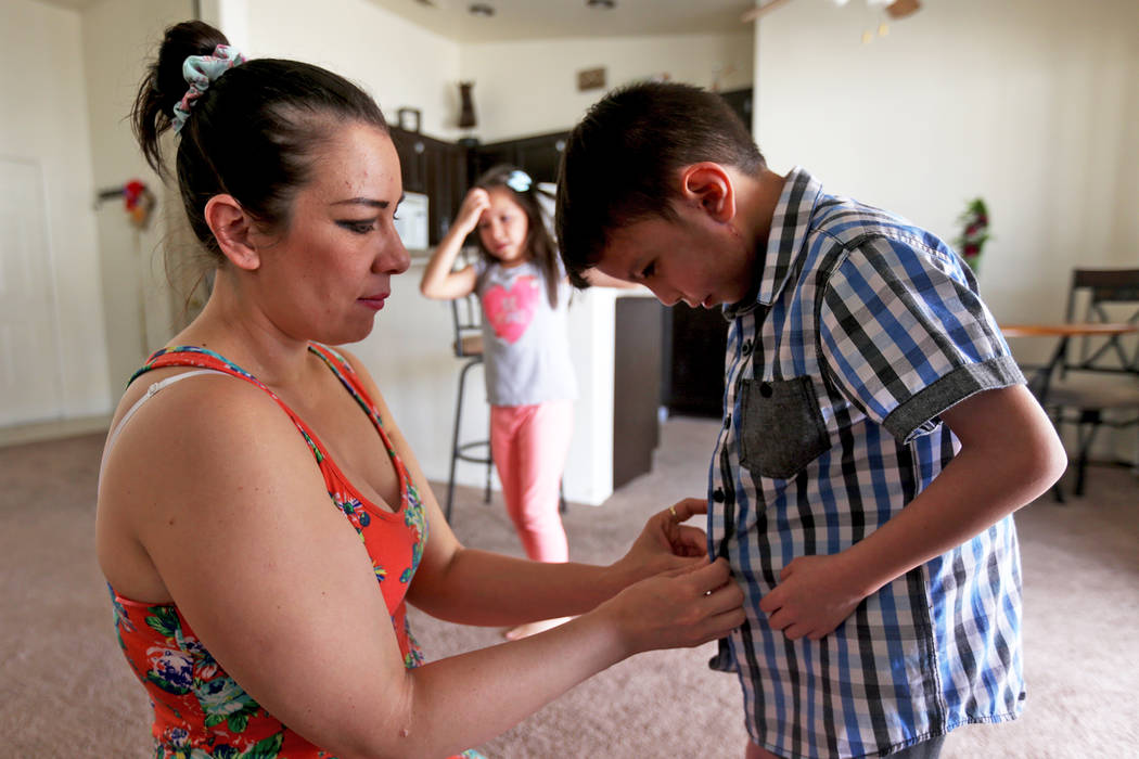 Liz Magana fixes the buttons for his son Abraham Chavez, 8, at their home on Sunday, March 19, 2017, in Las Vegas. Abraham recently had surgery to make it possible for him to smile. He was born wi ...