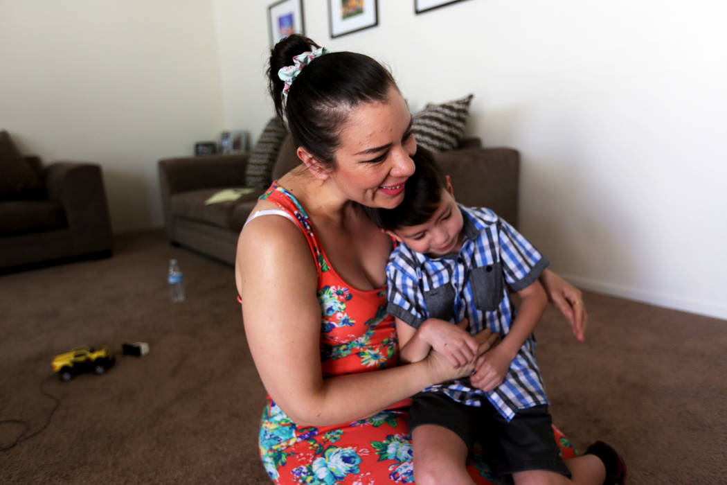 Liz Magana holds her son Abraham Chavez, 8, at their home on Sunday, March 19, 2017, in Las Vegas. Abraham recently had surgery to make it possible for him to smile. He was born with Möebius synd ...