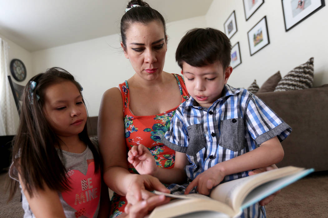 Abraham Chavez, 8, reads a book to his twin sister Aiden Chavez and his mom Liz Magana at their home on Sunday, March 19, 2017, in Las Vegas. Abraham recently had surgery to make it possible for h ...