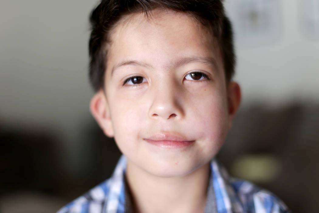 Abraham Chavez, 8, at his home on Sunday, March 19, 2017, in Las Vegas. Abraham recently had surgery to make it possible for him to smile. He was born with Möebius syndrome, which made part of hi ...