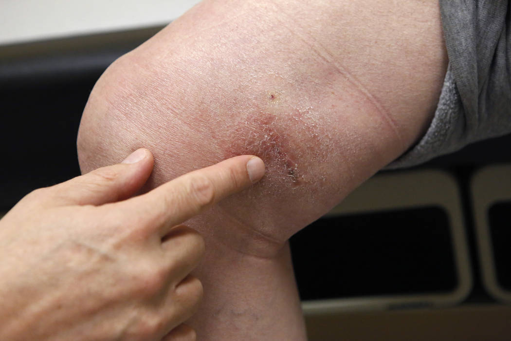 Dr. Tim Tollestrup inspects Mark Kline's knee on Wednesday, March 29, 2017, in Henderson. Tollestrup performed a surgery on the knee. (Christian K. Lee/Las Vegas Review-Journal) @chrisklee_jpeg