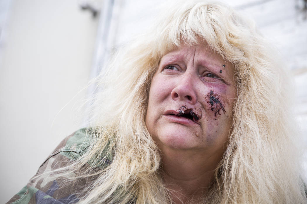 Joan Hobbs, 53, talks about the incident where she was bitten by a dog in northeast Las Vegas Tuesday, May 9, 2017. Patrick Connolly Las Vegas Review-Journal @PConnPie