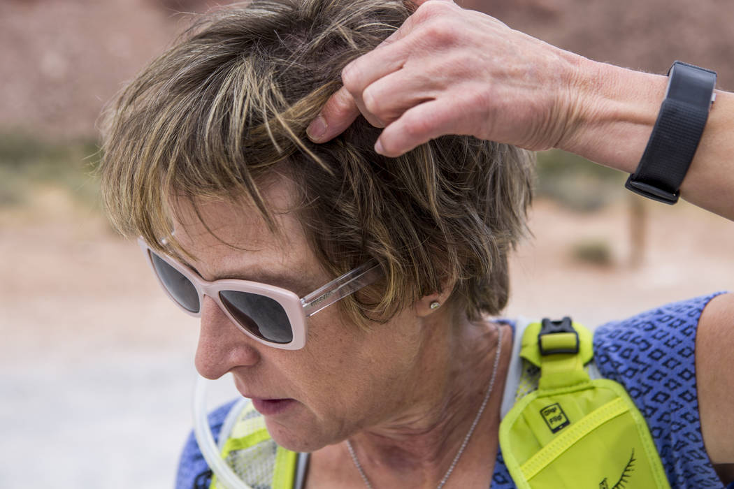 Candace Kawatsu shows where an incision was made in her head in Calico Basin on Thursday, May 18, 2017. Patrick Connolly Las Vegas Review-Journal @PConnPie