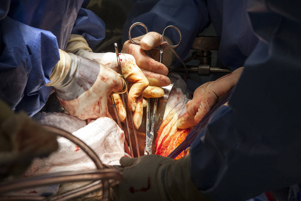 Dr. Quynh Feikes performs a surgery to fix an abdominal aneurysm at University Medical Center on Tuesday, May 23, 2017. Dr. Feikes is the only female cardiac surgeon in Nevada. (Patrick Connolly/L ...