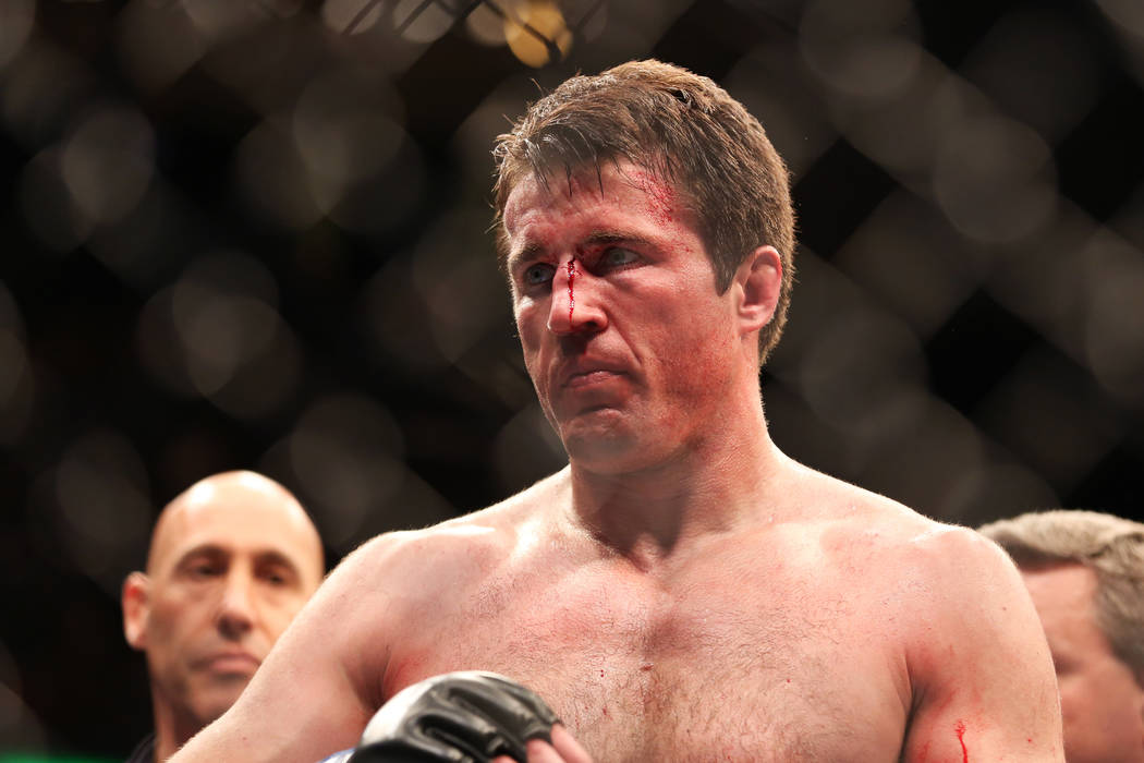 FILE - In this April 27, 2013, file photo, Chael Sonnen is shown after losing to champion Jon Jones in a UFC 159 Mixed Martial Arts light heavyweight title bout in Newark, N.J. Four months after S ...