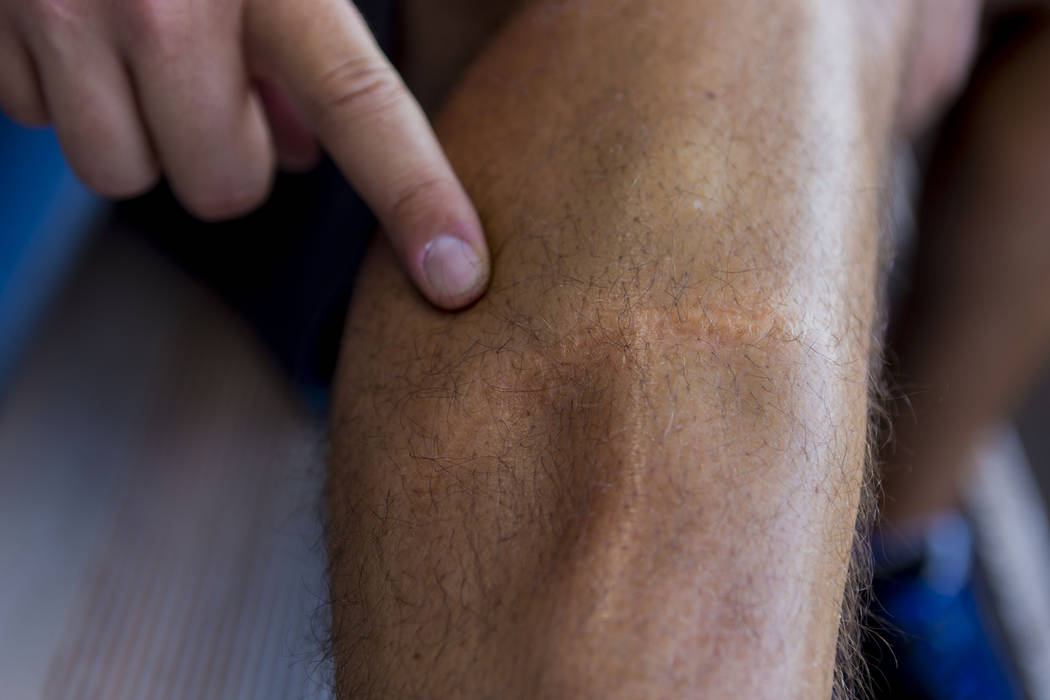 Las Vegas 51s pitcher Beck Wheeler shows his scar from a boating accident in 2007, at Cashman Field in Las Vegas, Wednesday, July 5, 2017. Elizabeth Brumley Las Vegas Review-Journal