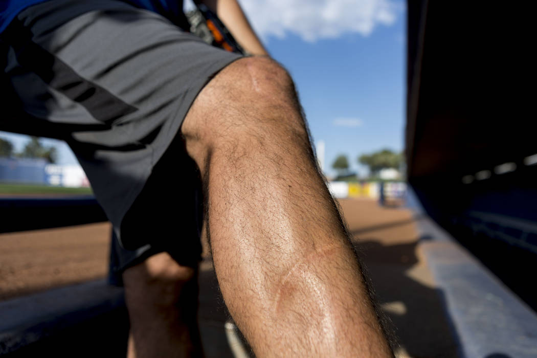 Las Vegas 51s pitcher Beck Wheeler's leg still has a scars   from a boating accident in 2007, at Cashman Field in Las Vegas, Wednesday, July 5, 2017. Elizabeth Brumley Las Vegas Review-Journal