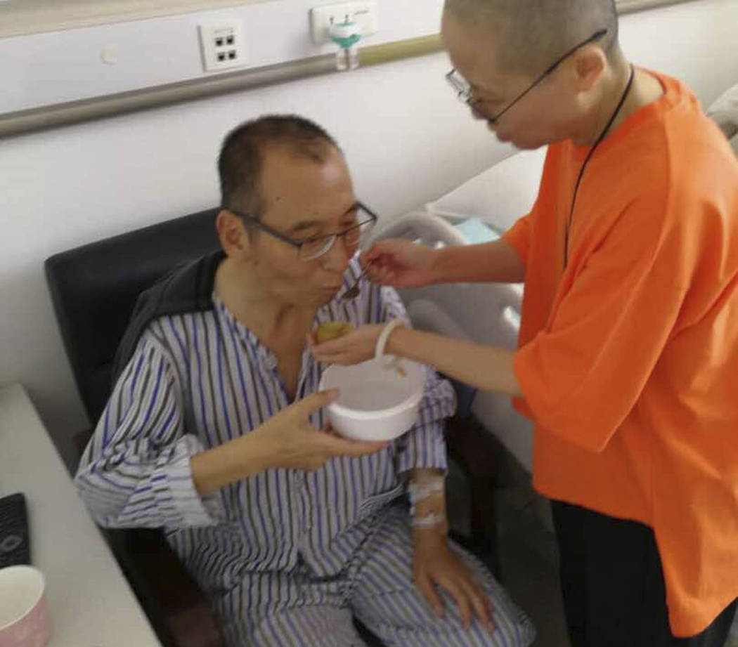In this recent undated handout photo, Chinese dissident and Nobel Prize laureate Liu Xiaobo, left, is attended to by his wife Liu Xia in a hospital in China. The judicial bureau in the northeaster ...