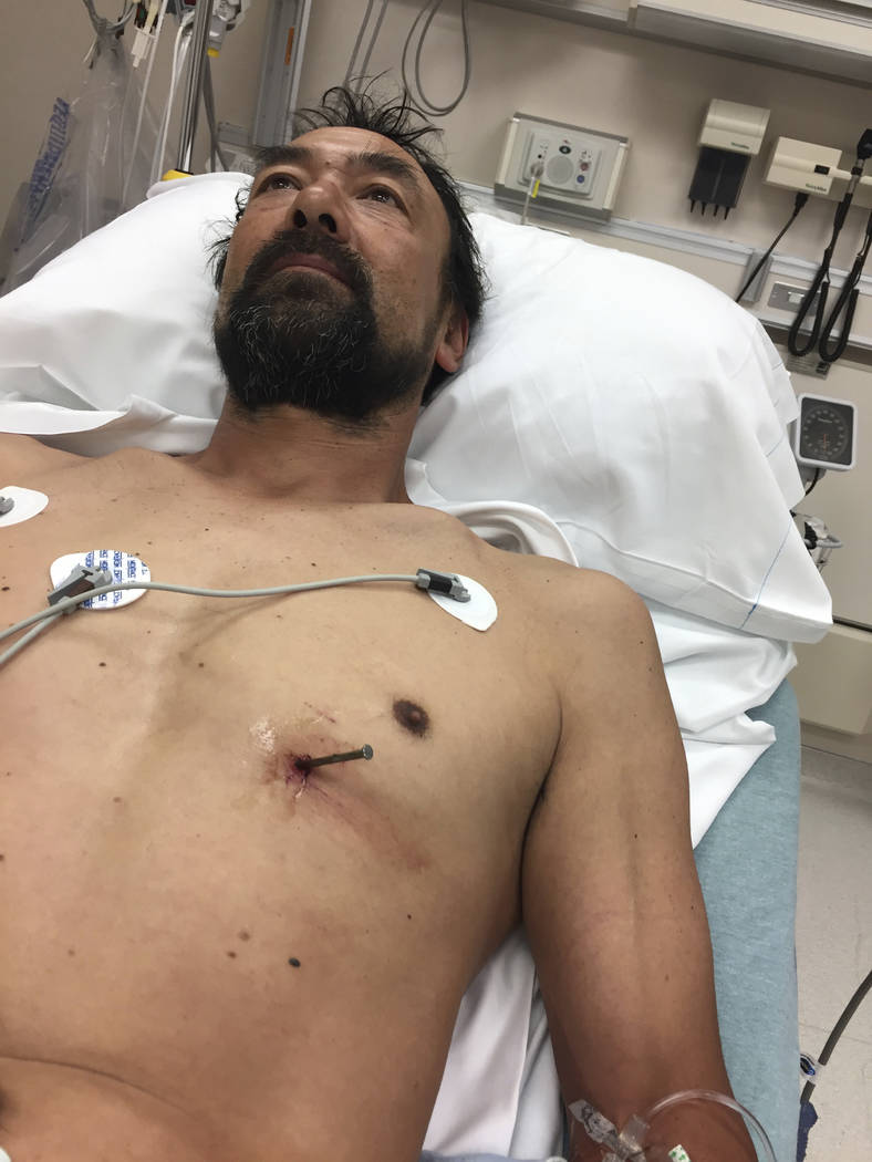 ThDoug Bergeson lies on a hospital bed June 25, 2017, at Aurora BayCare Medical Center in Green Bay, Wisconsin, before a doctor removed a nail from his heart. He had accidentally shot it into his  ...