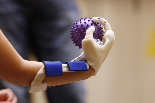 Hailey Dawson grips a rubber ball with her new prosthetic hand, which was made by a team of UNLV engineers, Thursday, Oct. 30, 2014 at UNLV. (Sam Morris/Las Vegas Review-Journal)