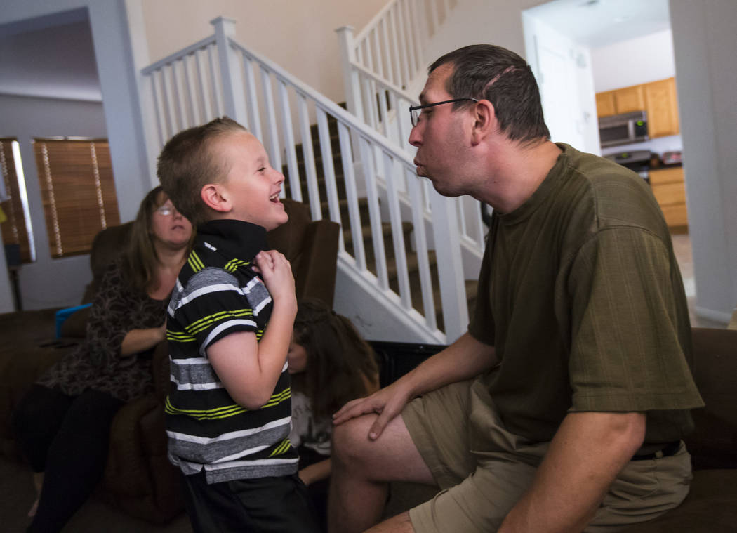 Matt Minkowsky, right, shows his son Brandon, 6, how to whistle at their home in northwest Las Vegas on Wednesday, Sept. 20, 2017. Matt currently has stage II brain cancer, and also underwent surg ...
