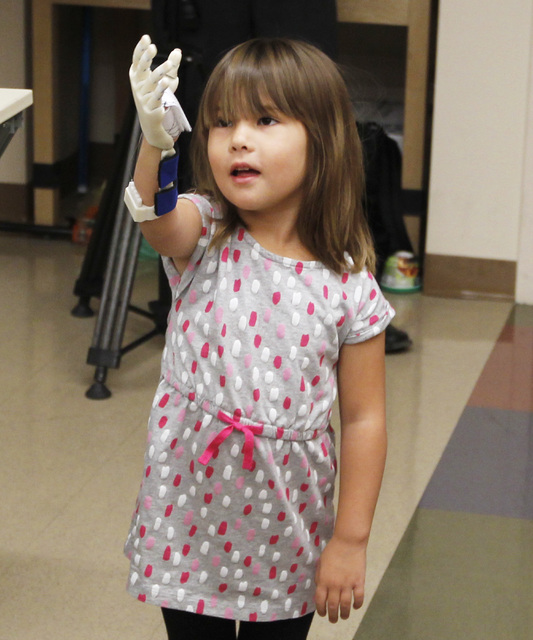 Hailey Dawson examines her new prosthetic hand, which was made by a team of UNLV engineers, Thursday, Oct. 30, 2014 at UNLV. (Sam Morris/Las Vegas Review-Journal)