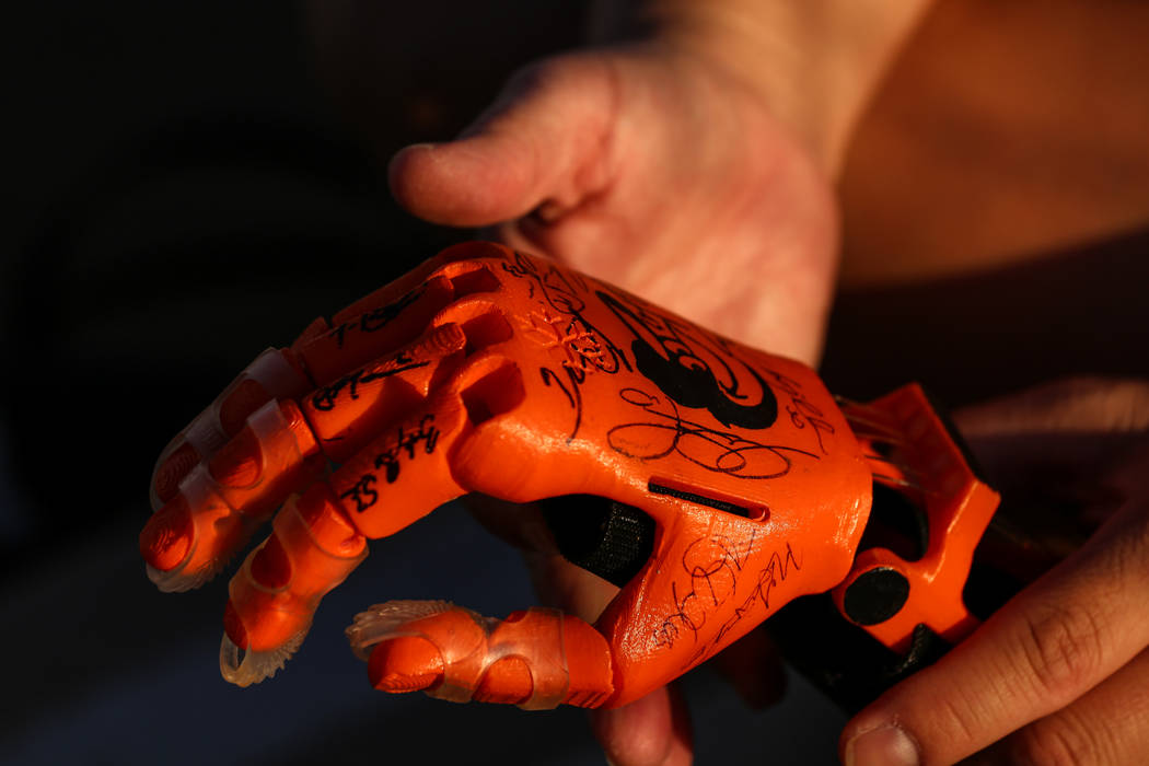 Yong Dawson, 48, of Henderson holds her daughter's 3-D printed prosthetic hand at Sunset Park in Las Vegas, Thursday, Oct. 5, 2017. Her daughter, Hailey Dawson, 7, was born with Poland syndrome le ...