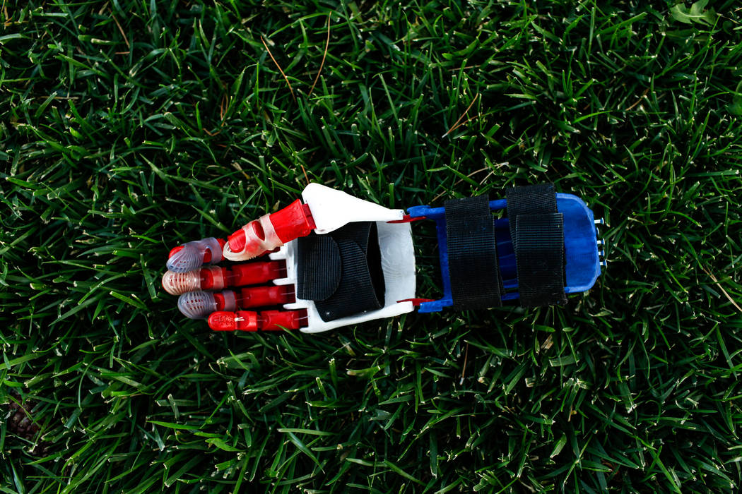 A 3-D printed prosthetic hand belonging to Hailey Dawson, 7, of Henderson, lays on the ground during practice at Anthem Hills Park in Henderson, Thursday, Oct. 19, 2017. A group of researches at U ...