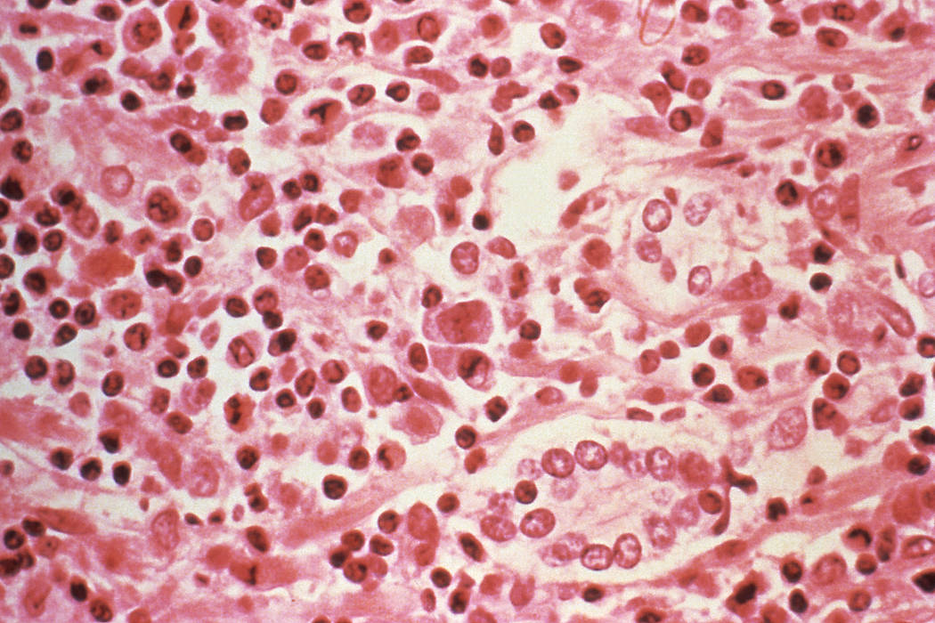 A micrographic study of liver tissue seen from a Hantavirus pulmonary syndrome patient. (Centers for Disease Control and Prevention/Handout via Reuters)