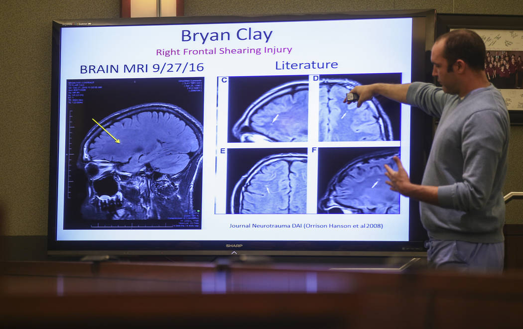 "Dr. Travis Snyder talks about the MRI imaging of Bryan Clay at the Regional Justice Center in Las Vegas on Thursday, Nov. 30, 2017. Clay was found guilty of raping and killing Ignacia ""Yadira"" ..."