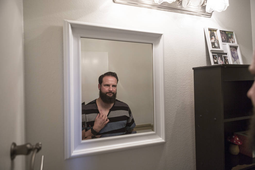 William King looks at his bullet wound from Oct. 1 when he was shot during the Route 91 Harvest festival in his home in Las Vegas, Wednesday, Dec. 13, 2017. Elizabeth Brumley Las Vegas Review-Jour ...