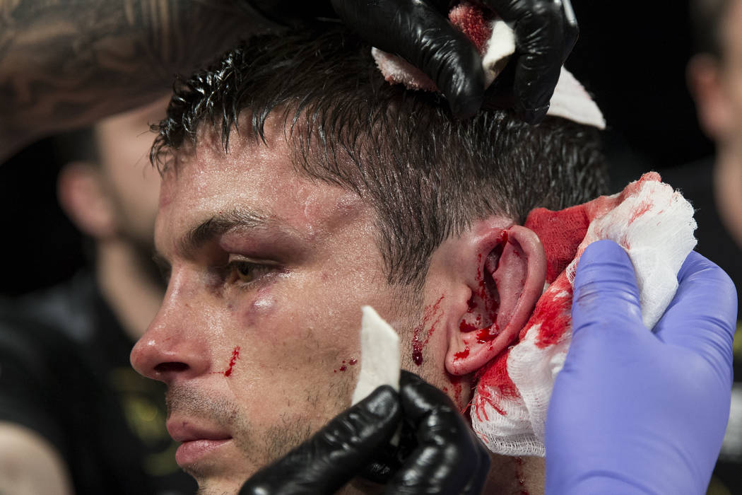 Stephen Smith receives medical attention after splitting his ear in his fight against Francisco Vargas in the super featherweight boxing bout at the Mandalay Bay Events Center in Las Vegas, Saturd ...