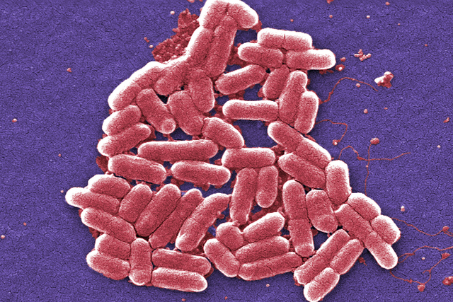 This 2006 colorized scanning electron micrograph image made available by the Centers for Disease Control and Prevention shows the E. coli bacteria. (Janice Carr/CDC via AP)
