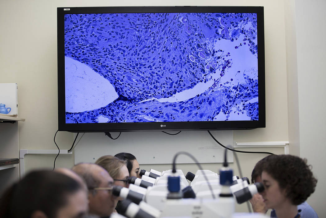In this Thursday, Nov. 10, 2016 photo, CDC workers look through microscopes at as an image of a skin biopsy is displayed on a screen at the Centers for Disease Control and Prevention in Atlanta.   ...