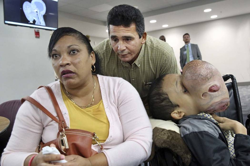 Emanuel Zayas sits with his parents Noel Zayas and Melvis Vizcaino at Holtz Children's Hospital at Jackson Memorial in Miami, Jan. 12, 2018. Emanuel Zayas died Friday, Jan. 19, 2018, days after do ...
