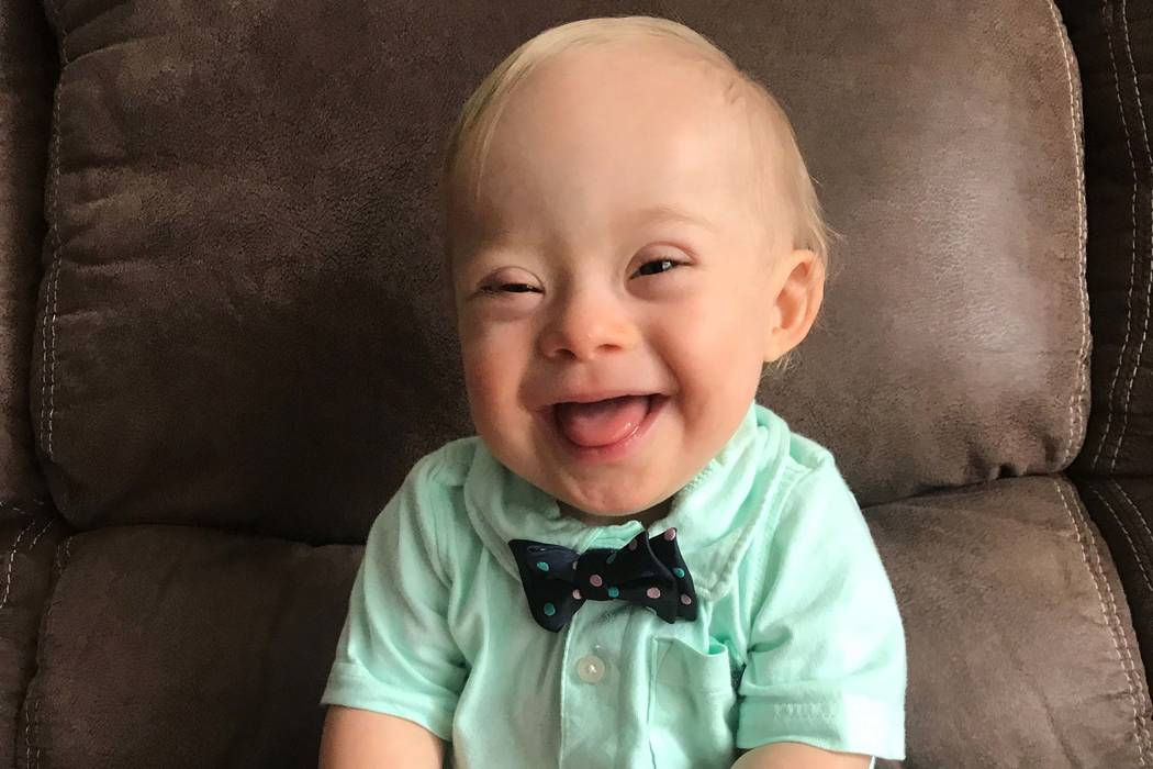 Boy With Down Syndrome Named Gerber Baby