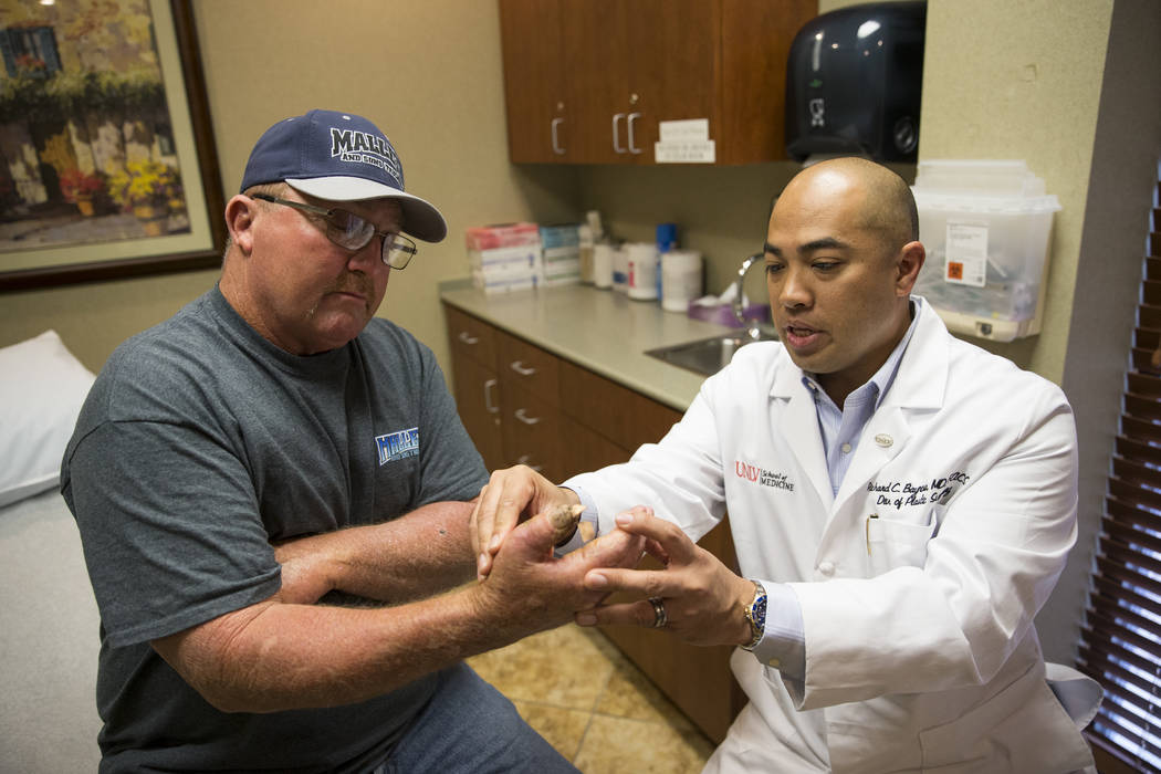 Dr. Richard Baynosa, right, chief of plastic surgery at University Medical Center and UNLV School of Medicine, checks the thumb of Ben Mays at the UNLV School of Medicine in Las Vegas, Tuesday, Fe ...