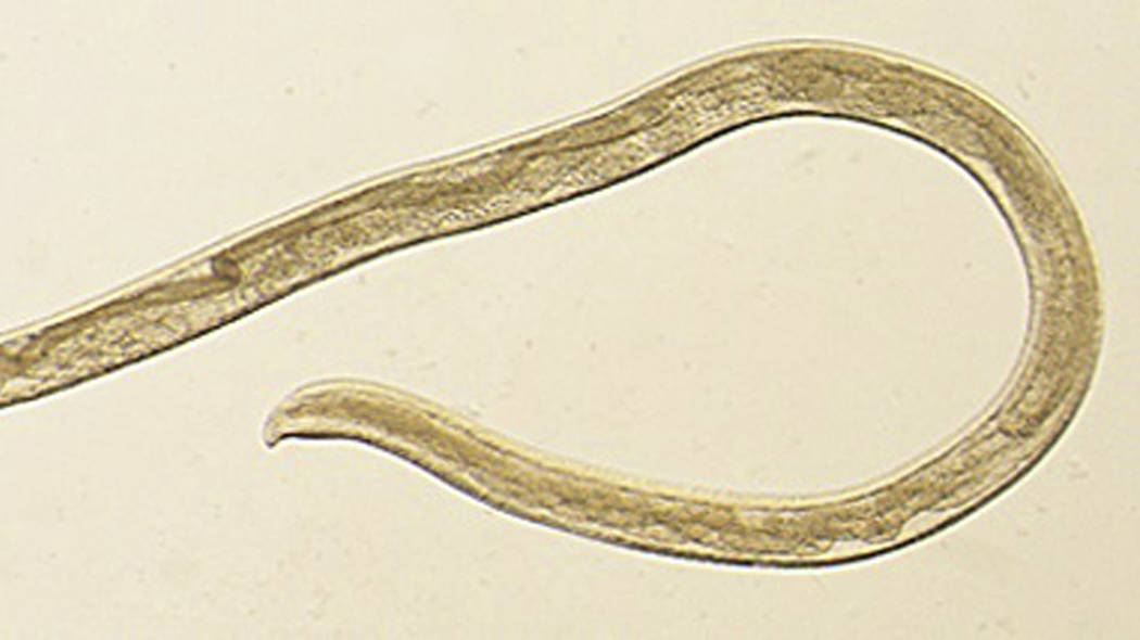 Thelazia gulosa, a type of eye worm seen in cattle in the northern United States and southern Canada, but never before in humans. (CDC via AP)