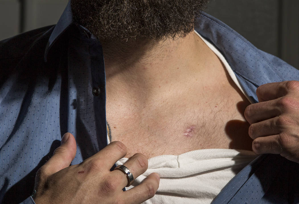 William King, aRoute 91 Harvest festival shooting survivor,shows his bullet wound at his Summerlin home on Wednesday, Jan. 31, 2018.  Patrick Connolly Las Vegas Review-Journal @P ...