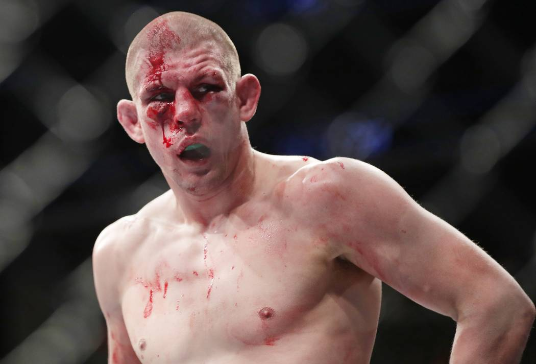 Joe Lauzon reacts after the second round of a fight with Chris Gruetzemacher in a lightweight mixed martial arts bout at UFC 223, Saturday, April 7, 2018, in New York. Gruetzemacher stopped Lauzon ...