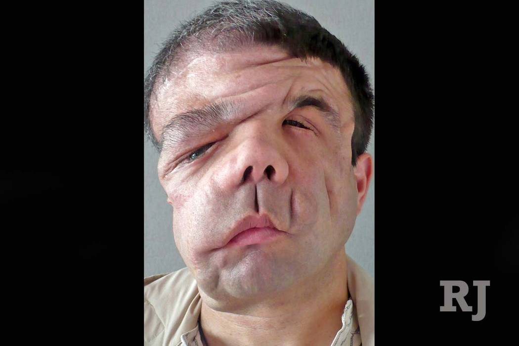 doctors give man 3rd face after 1st face transplant rejected las