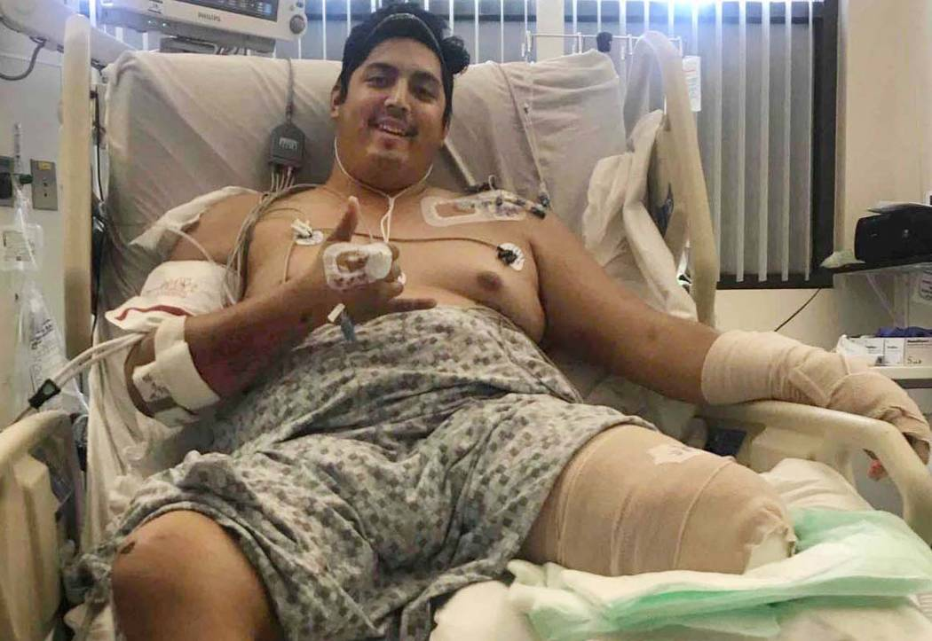 Tim Gierczic had his left leg amputated below the knee after he was injured when a pickup driver hit him as he rode his motorcycle in March, shattering his leg. (John Gierczic)
