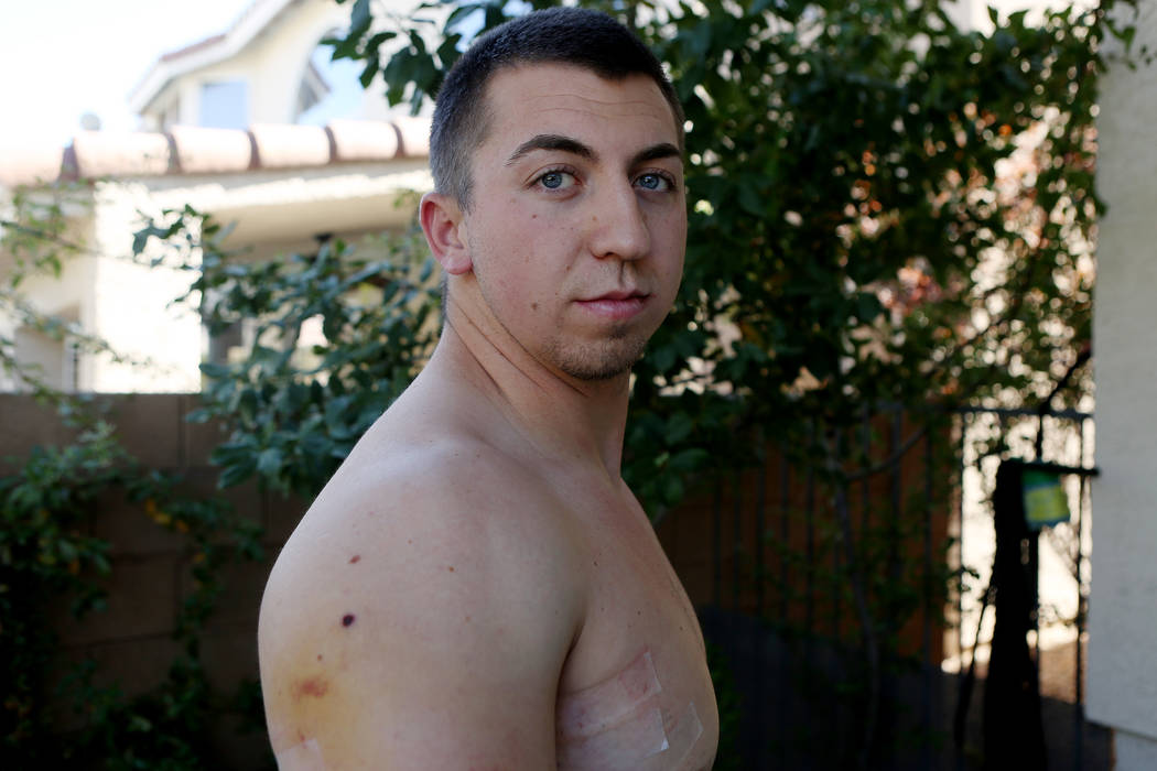 Las Vegas police officer Brady Cook shows his scars in his home in Las Vegas on Sunday, Oct. 8, 2017. Cook was on his second day of field training when he was shot during the Route 91 Harvest fest ...