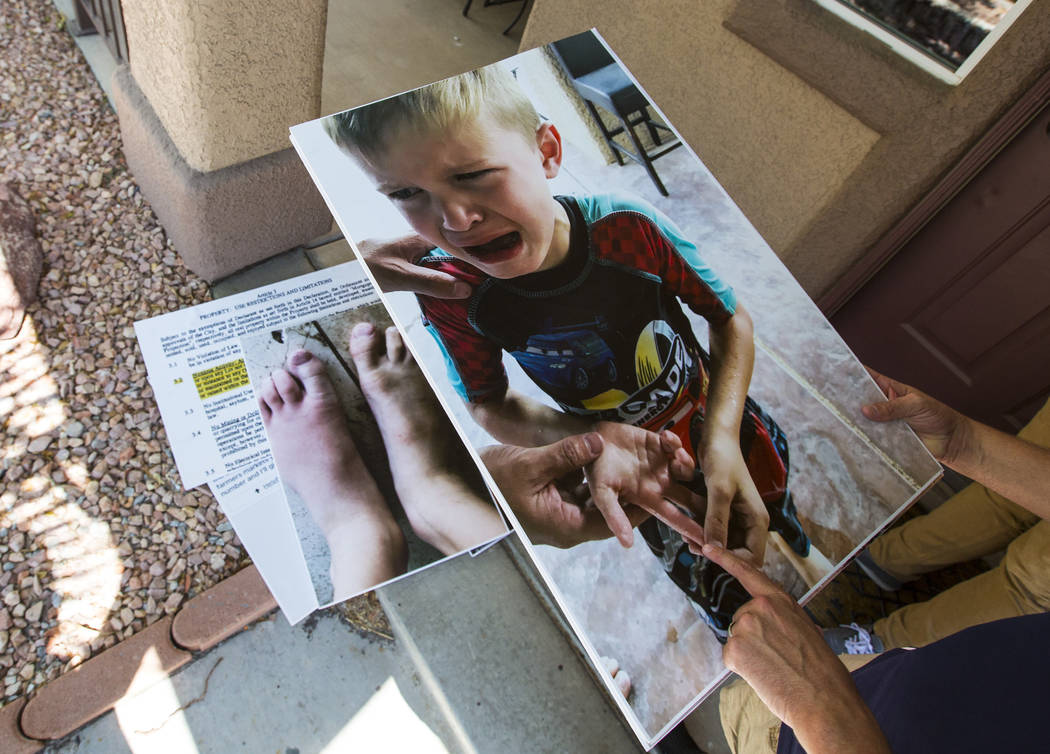 Brandon Hulet holds photos of his son Mason, pictured after being stung by a bee, that were shown at a recent city council meeting in Henderson on Thursday, Aug. 23, 2018. Hulet's son has been stu ...