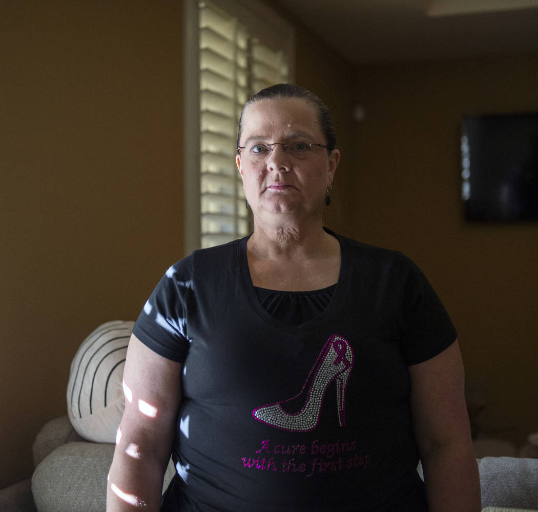 Kelly Trolia was diagnosed with stage four metastatic breast cancer in June 2017. About four weeks ago, Trolia had her first mastectomy. Caroline Brehman/Las Vegas Review-Journal @carolinebrehman