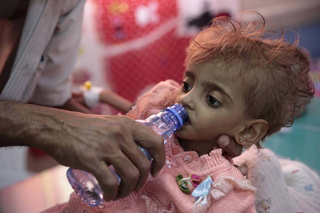 In this Thursday, Sept. 27, 2018, file photo, a father gives water to his malnourished daughter at a feeding center in a hospital in Hodeida, Yemen. An international aid group says an estimated 85 ...