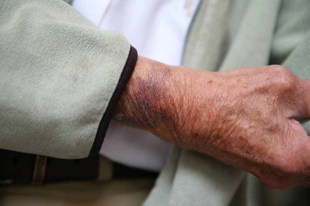 Dr. S. Jay Hazan, 93,a World War II veteran, shows a bruise on his arm that he says he sustained during his arrest last week, at his home in Las Vegas, Wednesday, Dec. 5, 2018. Hazan was arr ...