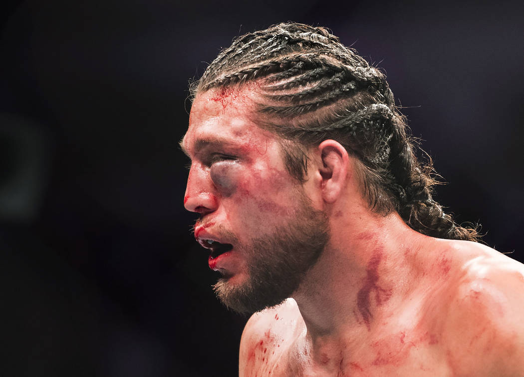 Brian Ortega leaves the octagon after being knocked out by Max Holloway during the featherweight championship mixed martial arts bout at UFC 231 in Toronto on Saturday, Dec. 8, 2018. (Nathan Denet ...
