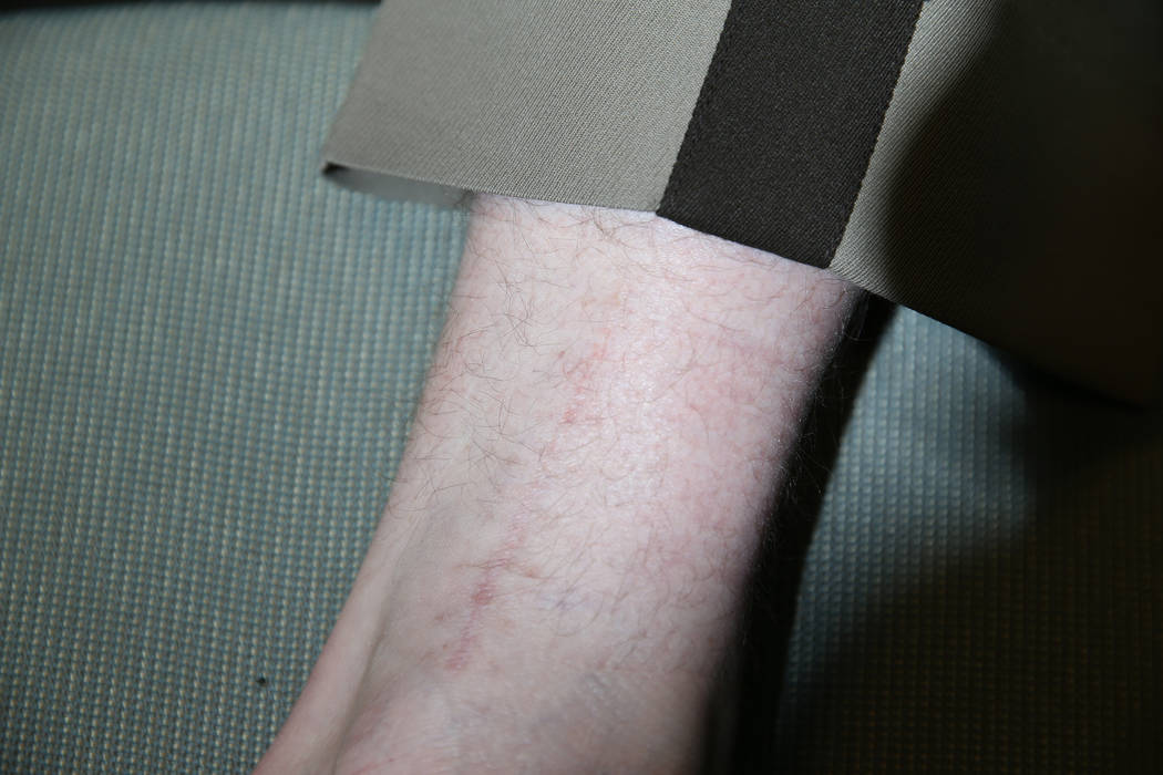 Las Vegas police gang enforcement officer Samuel Wittwer, who broke his leg while responding to the Oct. 1, 2017, shooting, shows the scar from his injury during an interview at Metropolitan Polic ...