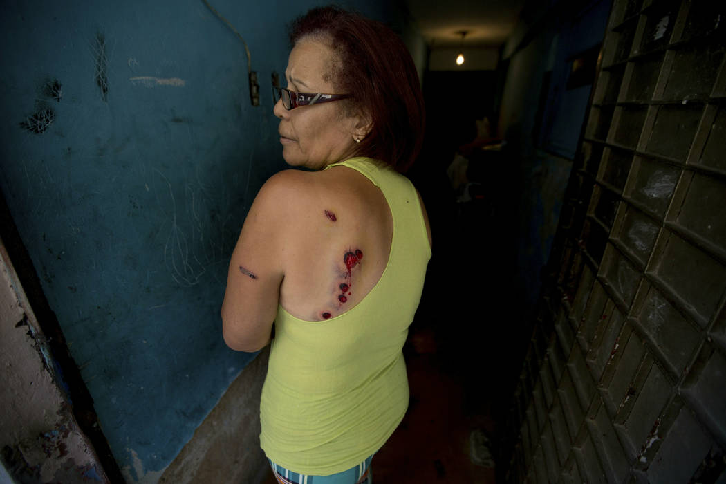Carmen Marcano, a Cotiza neighborhood resident, shows her wounds caused by rubber bullets fired by Venezuelan Bolivarian National Guardsmen during a protest a day prior in response to the arrest ...