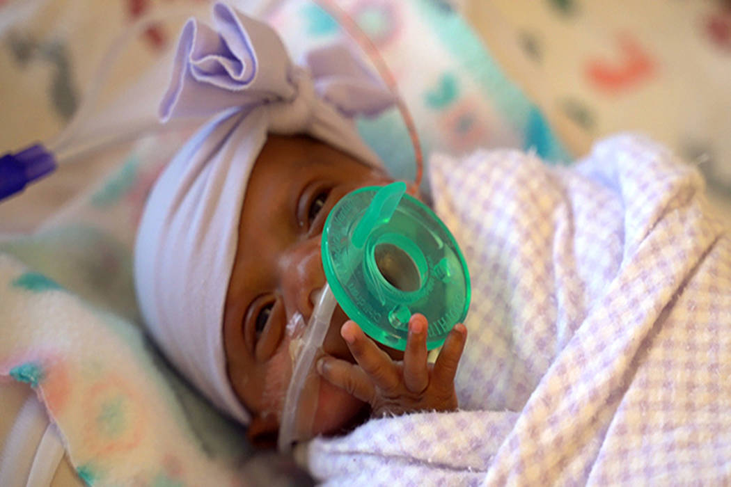 This March, 2019 photo provided by Sharp HealthCare in San Diego shows a baby named Saybie. Sha ...