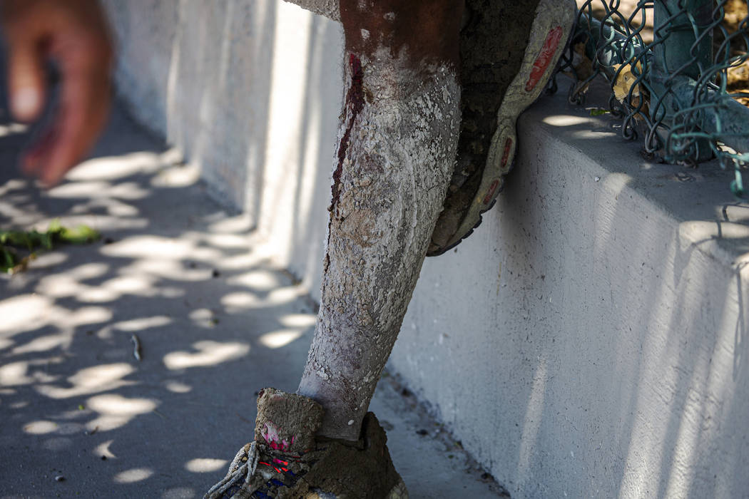 David Carnell's legs are covered in cement after helping children injured in a severe crash on ...
